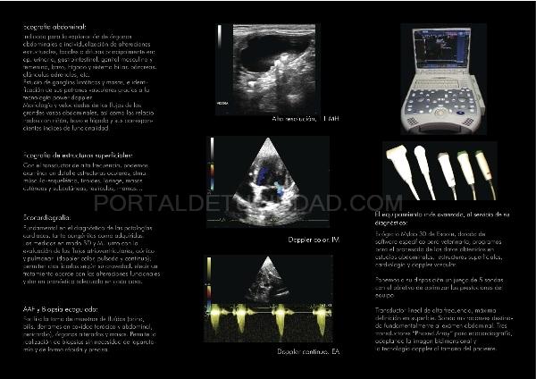 Destacado Ecografía abdominal y ecocardiografía