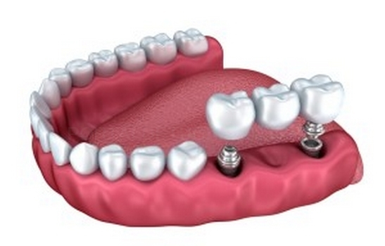 Oferta Prótesis Dentales