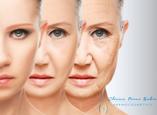 Ácido hialurónico, Arrugas finas y profundas