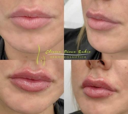 Relleno y perfilado de labios, Aumento labios