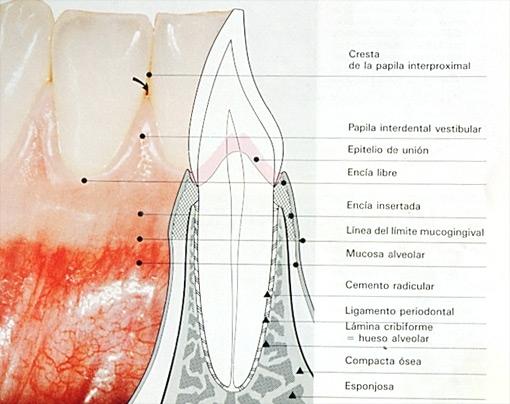 La periodontitis o piorrea