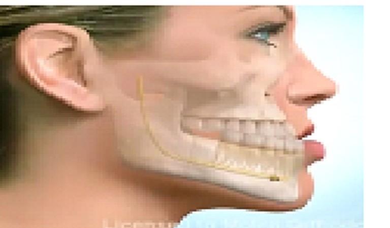 Dentista Meliana