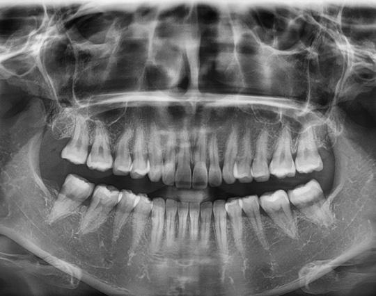 Oferta Ortopantomografía