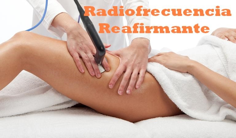 Flacidez Radiofrecuencia Electroestimulación