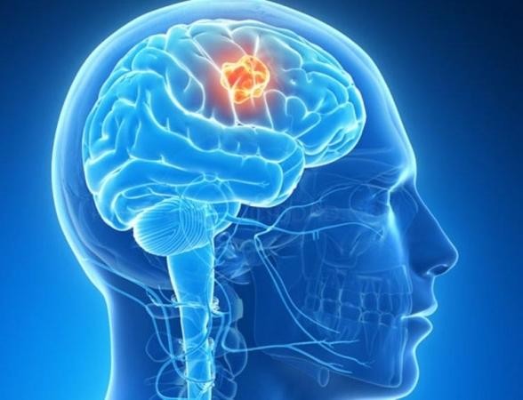 Neuropsicología en Badajoz
