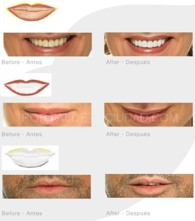 Micropigmentacion labios Palencia