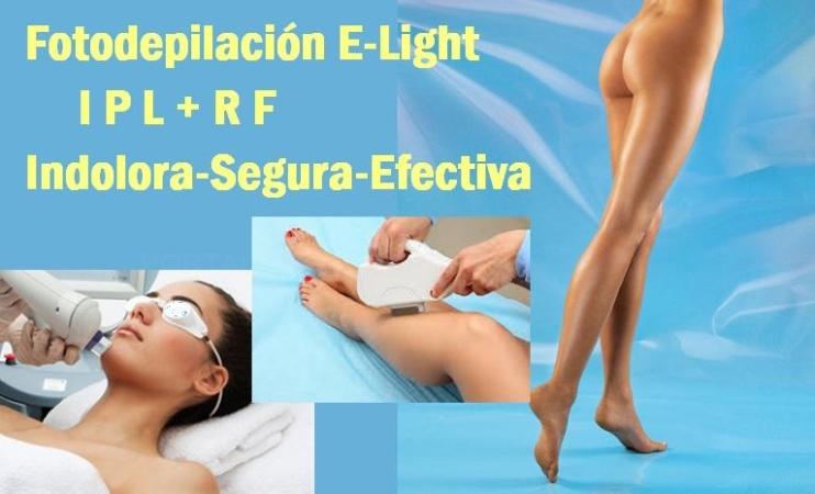 Fotodepilación E-Light