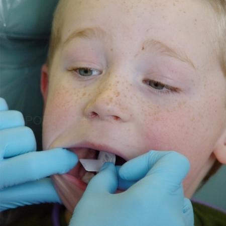 Odontopediatría en Cáceres