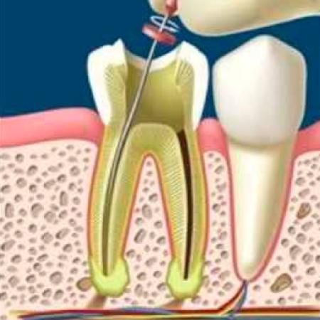 Endodoncia en Cáceres